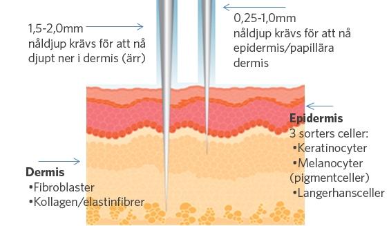 SkinPen-microneedling-behandling-nldjup-servita