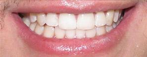 carillas dentales madrid