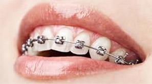 ortodoncia economica madrid