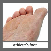 Athlete's Foot Stowmarket Chiropodists