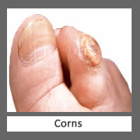Perform a physical exam and identify the source of problem and discuss treatment options. Perform unique comprehensive manual debridement or removal of the infected nail as indicated. Prescribe appropriate topical anti-fungal medication. Recommend long-term control and prevention techniques.
