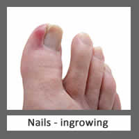Nails ingrowing Stowmarket Chiropodists